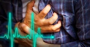 Cardiac arrest common in sick Covid 19 patients Study