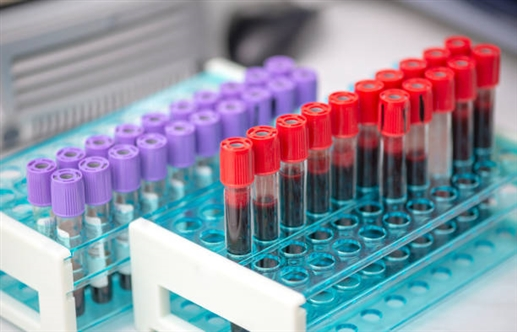 Find out how the antibody works corona success based on analysis of ineffective blood plasma samples