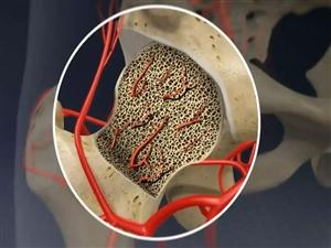 ਕੋਰੋਨਾ ਸੰਕਟ ਦੌਰਾਨ ਹੁਣ Bone Death ਦਾ ਖ਼ਤਰਾ, ਜਾਣੋ ਕੀ ਹੈ ਇਹ ਬਿਮਾਰੀ ਤੇ ਕਿਵੇਂ ਦੇ ਹਨ ਲੱਛਣ