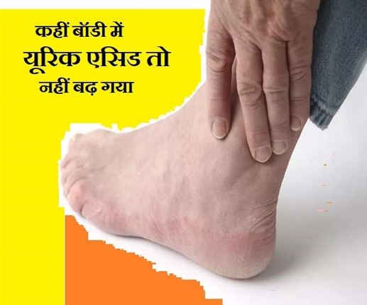 High Uric Acid Level Do You Have Joint Pain Be careful there may be signs of uric acid know the opinion of experts