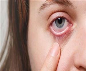 Black Fungus Infection : ਦਿੱਲੀ ਹਾਈ ਕੋਰਟ ਪਹੁੰਚੀ ਬਲੈਕ ਫੰਗਸ ਨੂੰ ਮਹਾਮਾਰੀ ਐਲਾਨਣ ਦੀ ਮੰਗ, ਦੂਸਰੇ ਬੈਂਚ ਸਾਹਮਣੇ ਕੱਲ੍ਹ ਹੋਵੇਗੀ ਸੁਣਵਾਈ