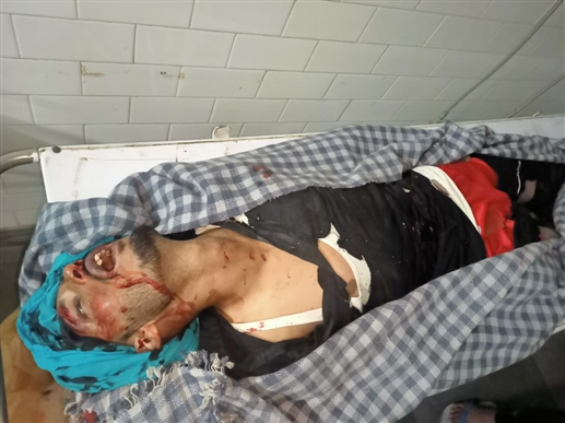 Accident News Terrible bus motorcycle collision in Barnala a young man died