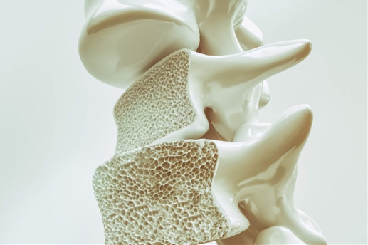 the risk of which is higher in women Osteoporosis