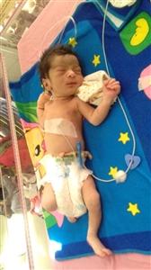 Newborn baby found in a pile of garbage